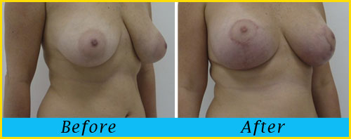miami-breast-lift